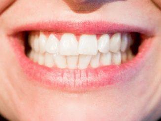dientes y encias