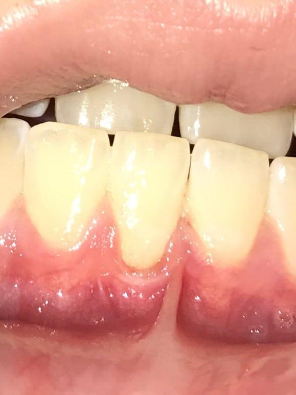 https://detodoensalud.org/remedios-caseros/piorrea-o-periodontitis-remedios-para-tratarla-en-casa/