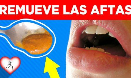 10 Remedios caseros para las aftas bucales o ulceras efectivos y comprobados