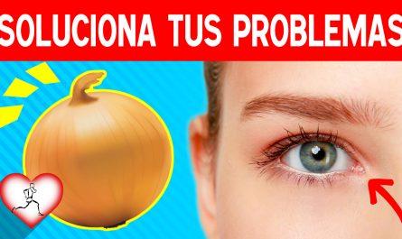 14 Condiciones de salud que se pueden solucionar con una cebolla