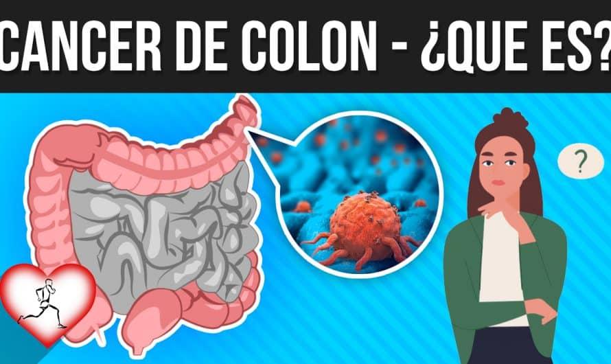 CÁNCER DE COLON: Que es, síntomas, causas, como evitarlo, posible tratamiento y mas