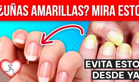 ¿Tienes las uñas amarillas? 8 razones por las que las uñas son amarillas según los dermatólogos