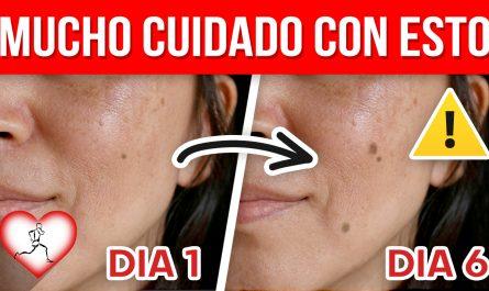 Si esto aparece en tu piel TEN CUIDADO puede ser una señal de cáncer de piel