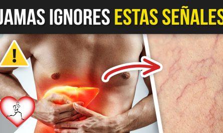 10 Señales de un Hígado Enfermo o con Cirrosis y debes Prestar Atención de Inmediato