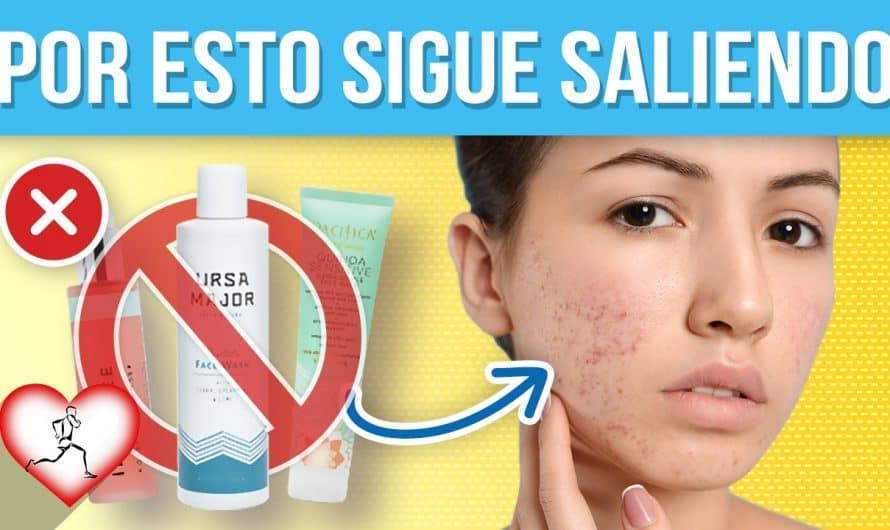 12 SORPRENDENTES razones por las cuales te sigue dando acné y no lo sabias