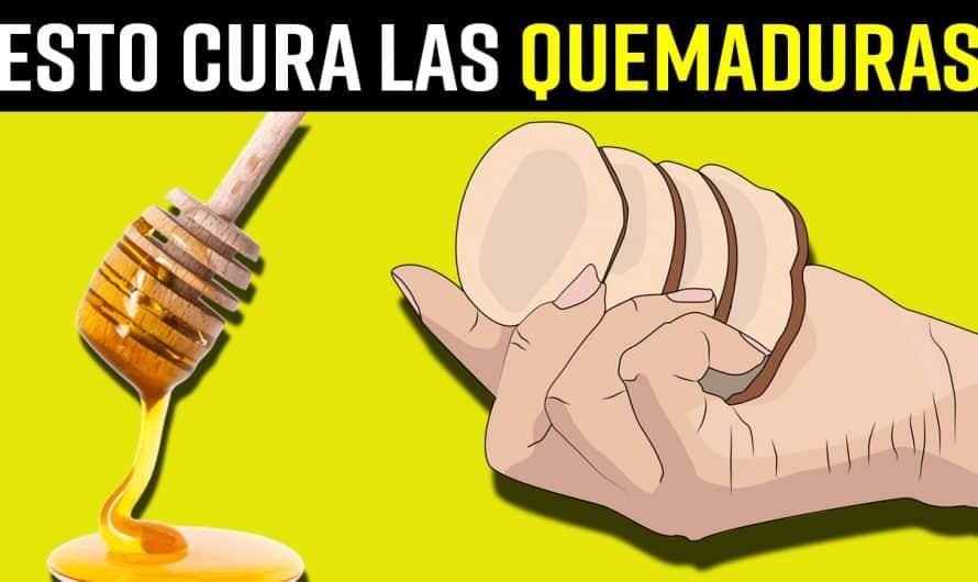 9 Remedios Caseros seguros para ALIVIAR LAS QUEMADURAS y acelerar su CURACIÓN