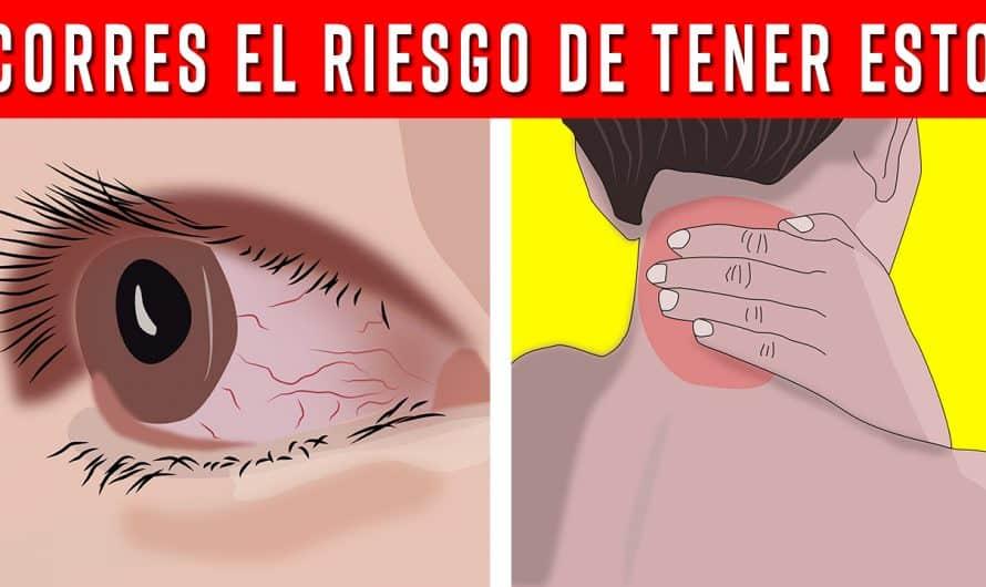 10 RIESGOS para la salud de SENTARSE frente al COMPUTADOR por mucho TIEMPO