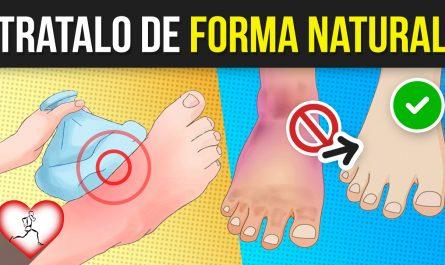 10 Maneras NATURALES de reducir la HINCHAZÓN FÁCILMENTE sin SALIR de casa
