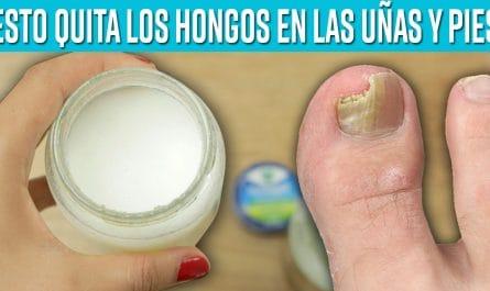 Elimina en 1 semana los hongos de las uñas de los pies con este remedio casero que realmente funciona