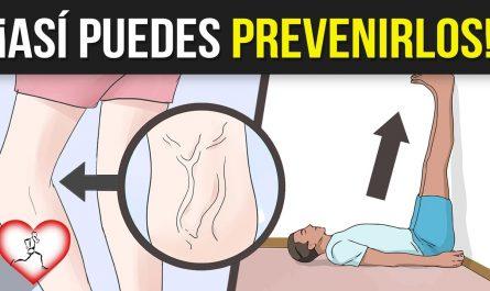 7 SEÑALES de ADVERTENCIA de COÁGULOS DE SANGRE y como PODRÁS prevenir este padecimiento fácilmente