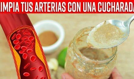 Esto Destapa Las Arterias, Baja El Colesterol, Triglicéridos y hace que tu SANGRE FLUYA normal