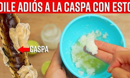Estos Ingredientes Milagrosos QUITAN La Caspa Y Le Dan Brillo A Tu Cabello desde la primera aplicaci