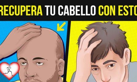 ¿Miedo a quedarte calvo? 10 Consejos para PREVENIR la CALVICIE que REALMENTE funcionan