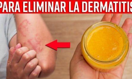 Aplica Esto en La DERMATITIS Por Alergia Y Despídete De Este MAL Rápidamente