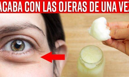 Aplica Esto En El Contorno De Tus Ojos Y Elimina Las Ojeras y Bolsas en los párpados Rápidamente