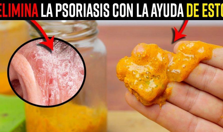 Aplica Esta Crema Casera En Las Zonas Con Psoriasis y Elimina Este Mal De Forma Rápida y Natural