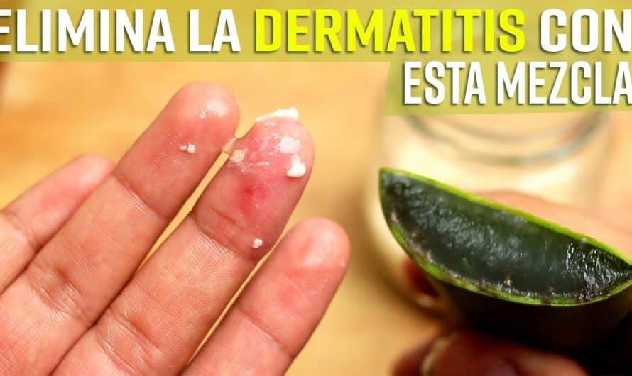 Cuando Aplicas Esta Mezcla En Tu Dermatitis o Eczema, Protegerás tu Piel y Acabarás Con Los Síntomas